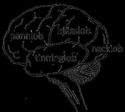 hjärnblödning höger sida